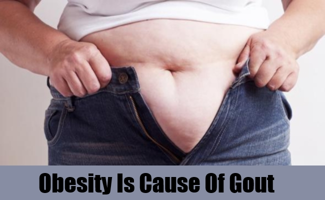 Obesity Is Cause Of Gout