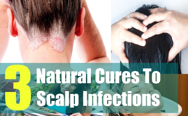 3 Natural Cures To Scalp Infections