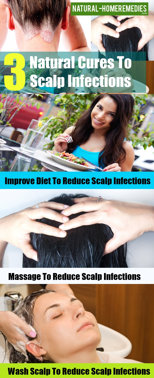 Natural Cures To Scalp Infections