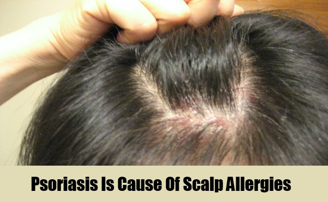 Psoriasis Is Cause Of Scalp Allergies