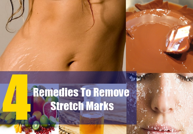 4 Remedies To Remove Stretch Marks