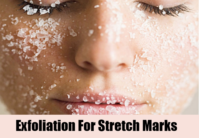 Exfoliation For Stretch Marks