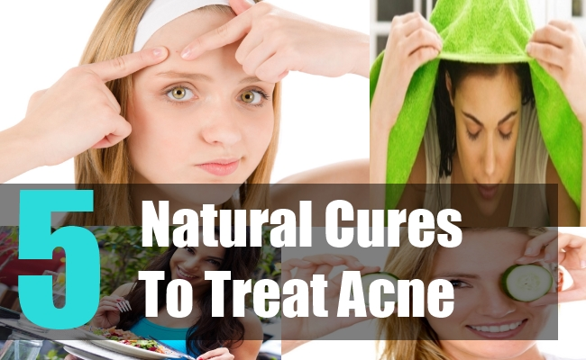 5 Natural Cures To Treat Acne