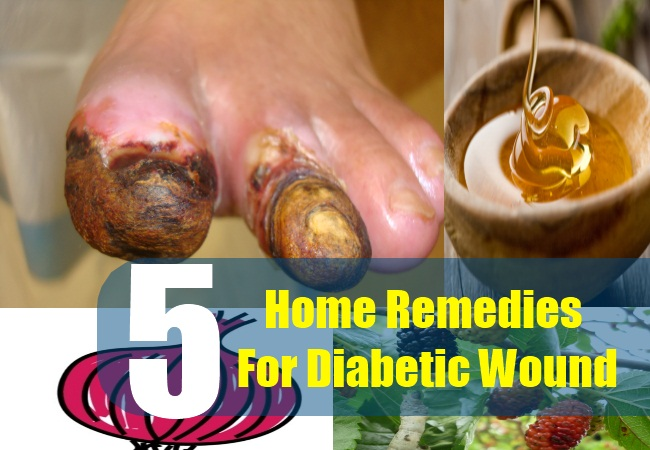 5 Home Remedies For Diabetic Wound