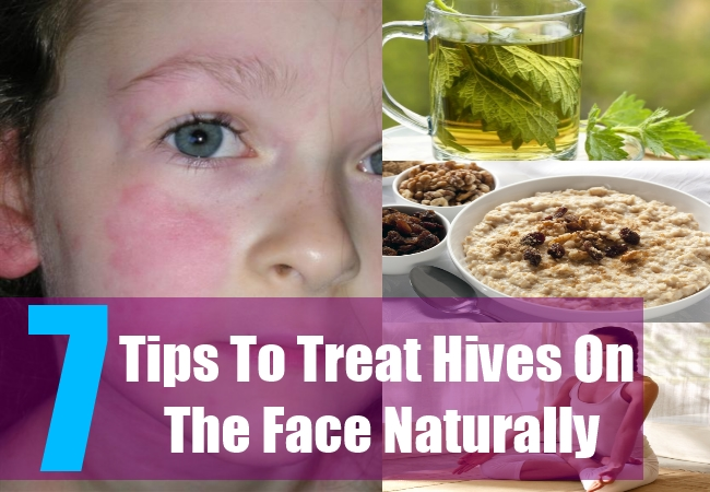 7 Tips To Treat Hives On The Face Naturally