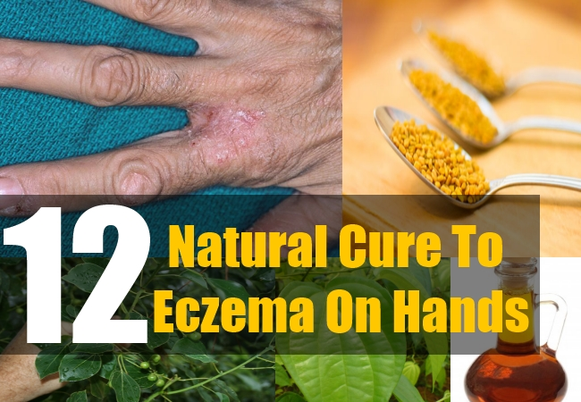 12 Natural Cure To Eczema On Hands