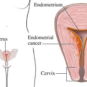 Symptoms Of Endometrial Cancer