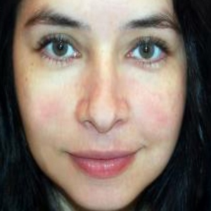 Skin Care Tips For Rosacea