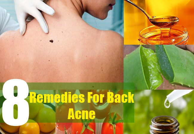 8 Remedies For Back Acne