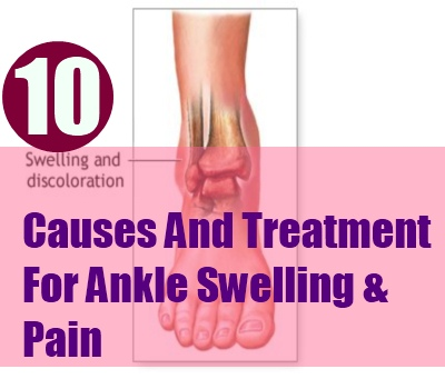 Ankle Swelling & Pain