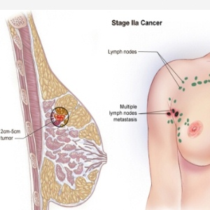 stage 2 lobular breast cancer