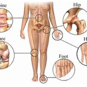 Causes And Symptoms Of Degenerative Joint Disorder