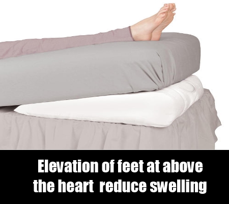 Effective Treatments For Swelling In Ankles How To Treat Swollen - Elevate feet