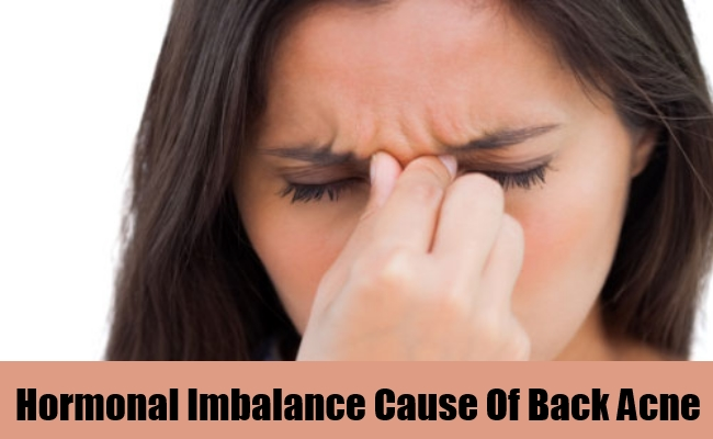 Hormonal Imbalance Cause Of Back Acne