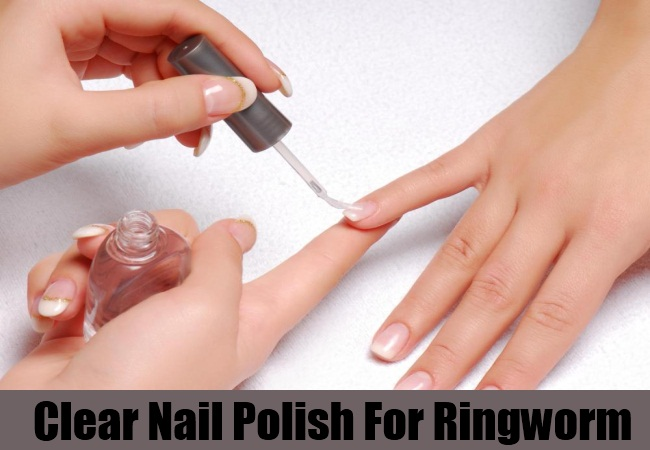 Clear Nail Polish For Ringworm