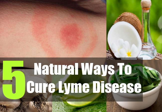 5 Natural Ways To Cure Lyme Disease