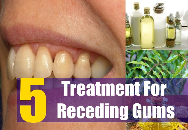 5 Natural Cure Receding Gums Natural Treatment Cure For Receding