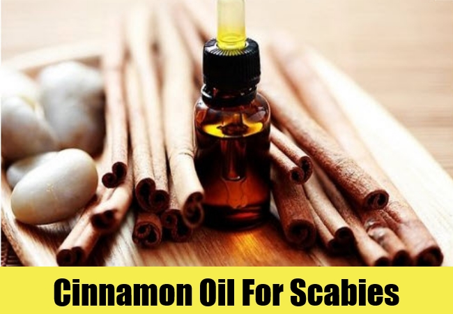 Cinnamon Oil For Scabies