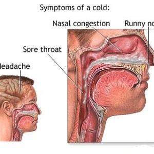 Top 10 Foods To Treat The Common Cold