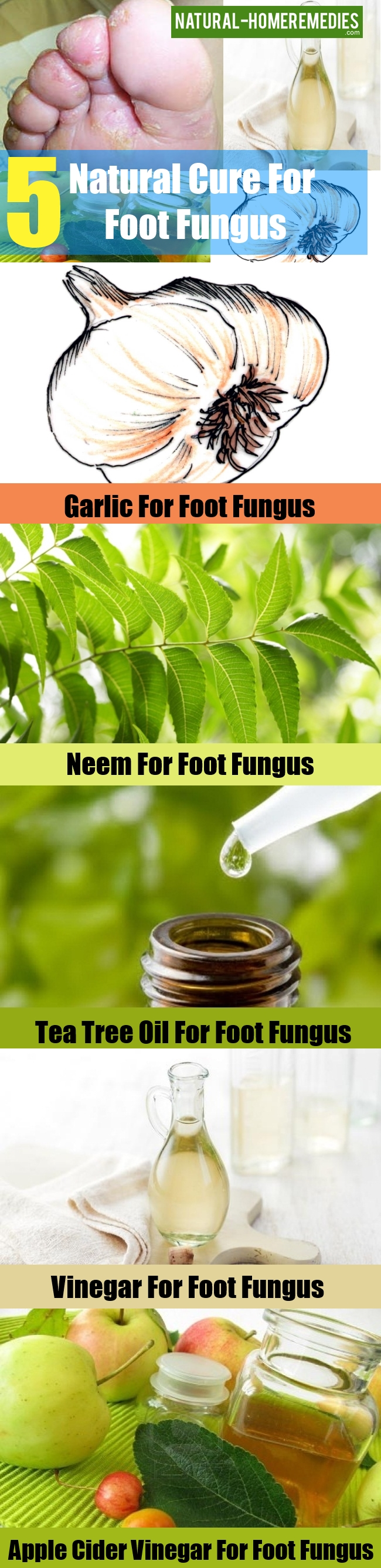 Natural Cure For Foot Fungus
