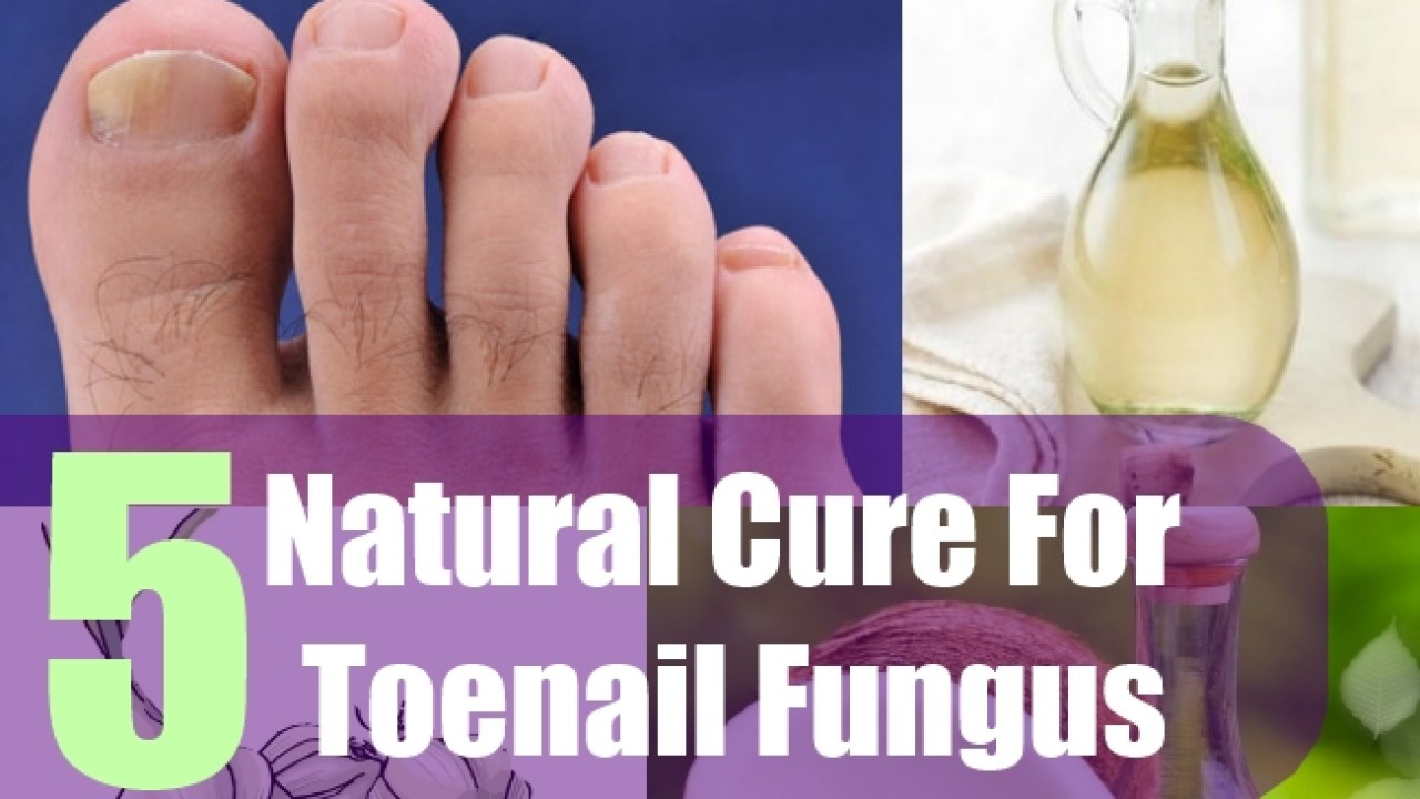 5 Natural Cure For Toenail Fungus - Natural Treatments & Cures For ...