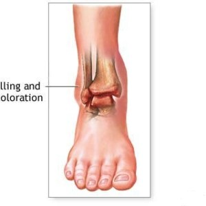 Ankles Swelling