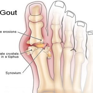 Top 5 Ways to Prevent Gout