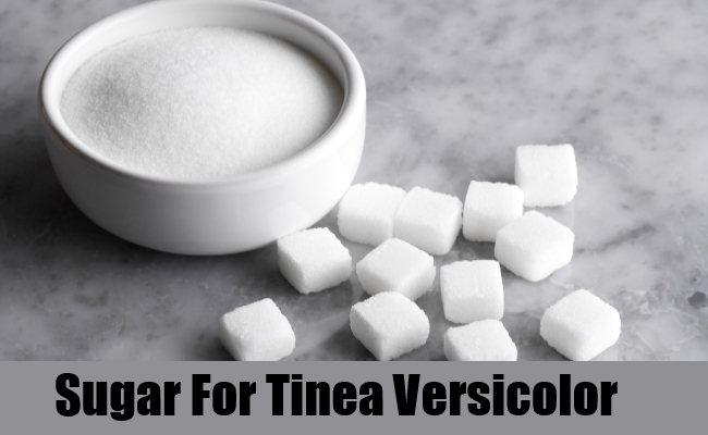 Sugar For Tinea Versicolor