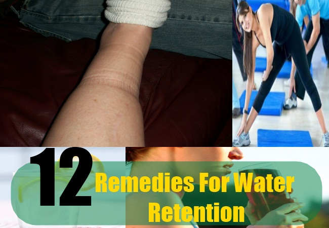 Natural Cures For Water Retention Swelling