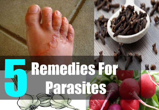 5 Remedies For Parasites