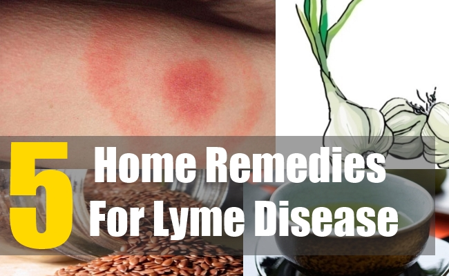 5 Home Remedies For Lyme Disease