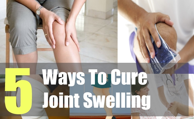 5 Ways To Cure Joint Swelling