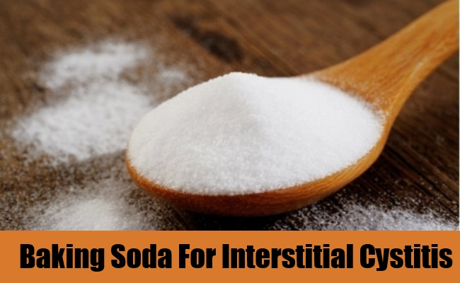 Baking Soda For Interstitial Cystitis