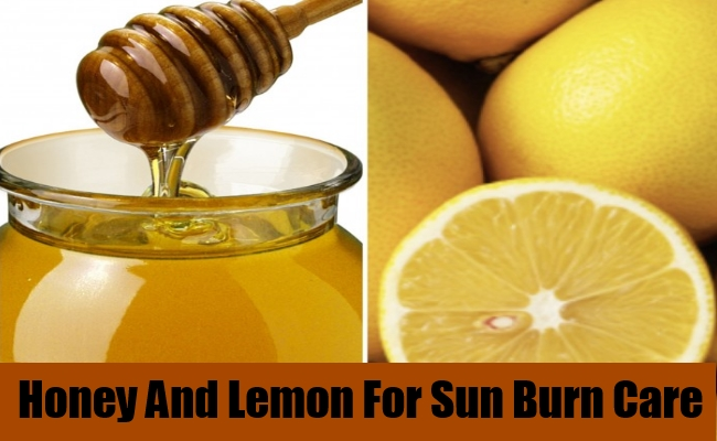 Honey And Lemon For Sun Burn Care