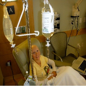 Chemotherapy Treatment Of Metastatic Breast-Cancer