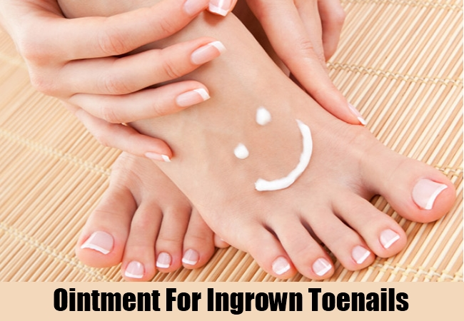 Ointment For Ingrown Toenails