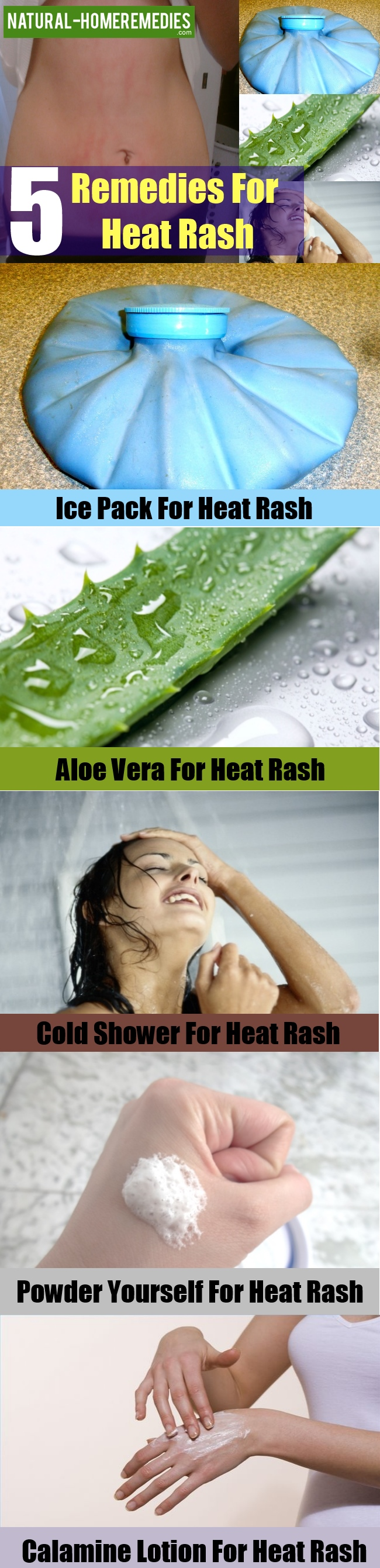 Remedies For Heat Rash