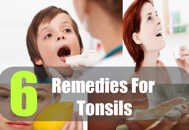 6 Remedies For Tonsils