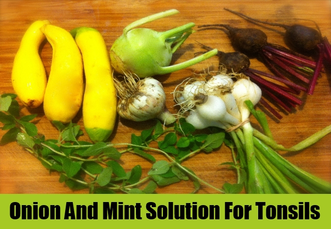 Onion And Mint Solution For Tonsils