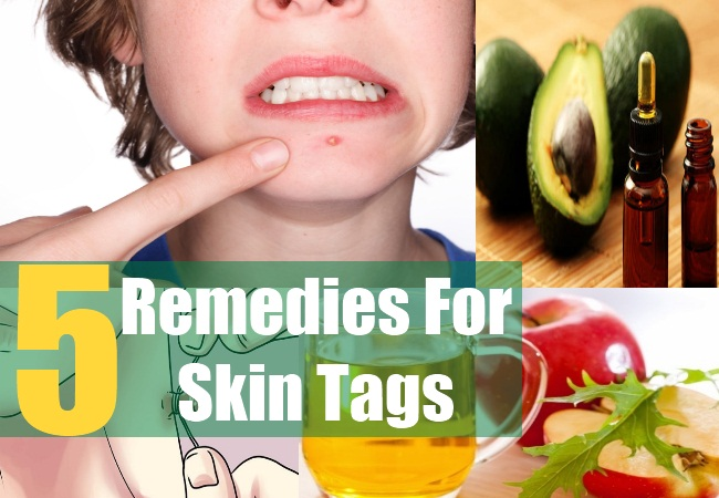 5 Remedies For Skin Tags