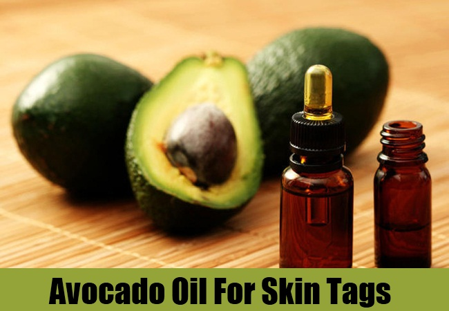 Avocado Oil For Skin Tags