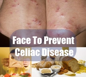 Face To Prevent Celiac Disease