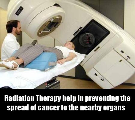 Radioablation Treatment
