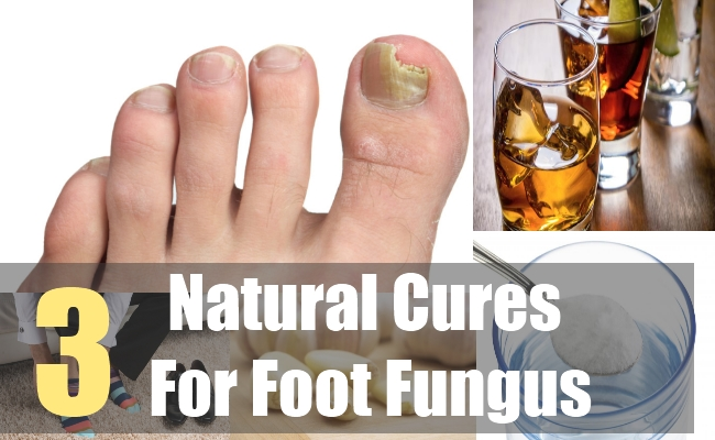 3 Natural Cures For Foot Fungus