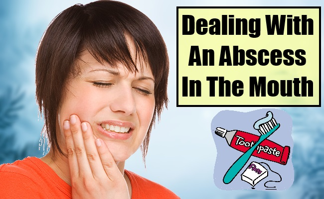 Abscess In The Mouth