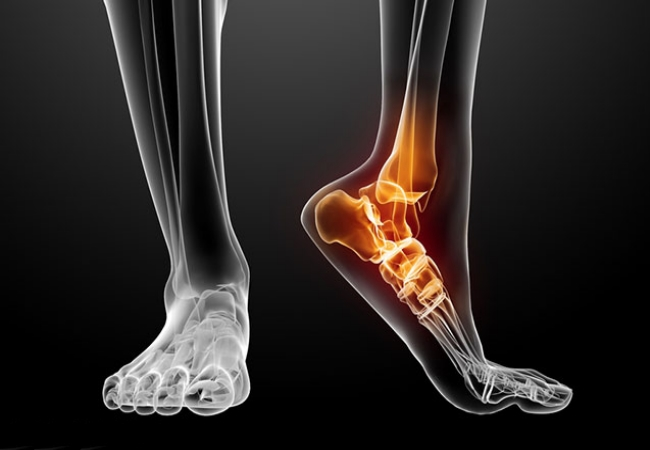 ankle fusion surgery