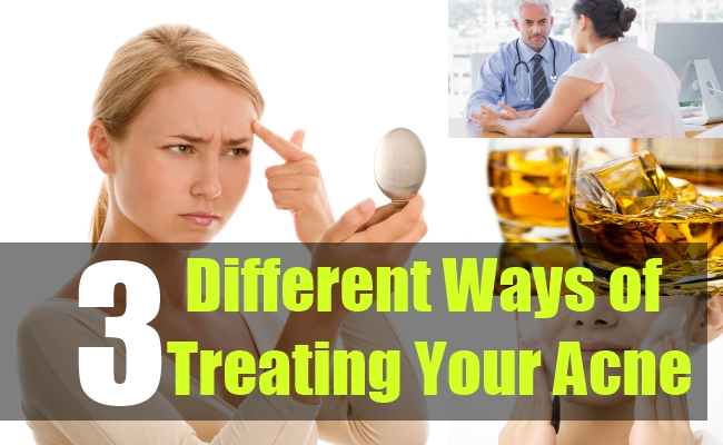 3 Different Ways of Treating Your Acne