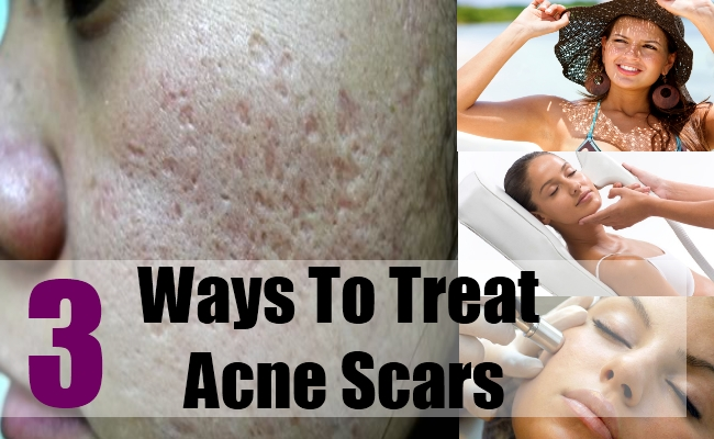 3 Ways To Treat Acne Scars