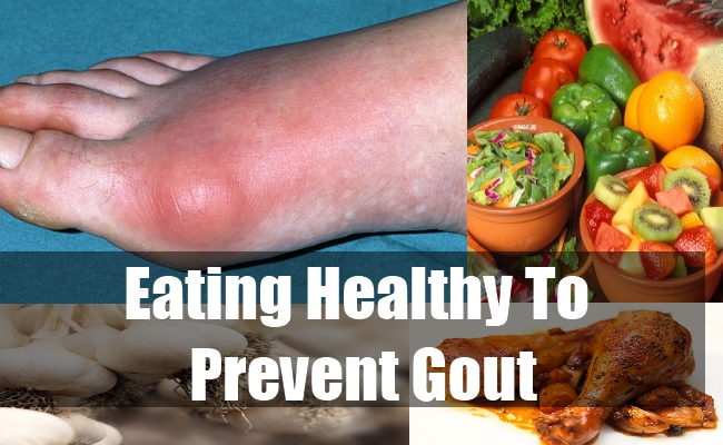 Eating Healthy to Prevent Gout