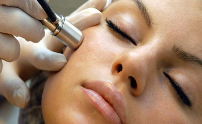 Laser acne scar treatment